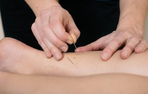 Sue McCall acupuncture