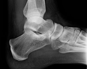 ankle sprain x-ray